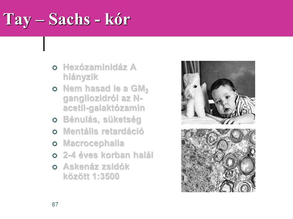 67 Tay – Sachs - kór Hexózaminidáz A hiányzik Nem hasad le a GM 2 gangliozidról az N- acetil-galaktózamin Bénulás, süketség Mentális retardáció Macroc