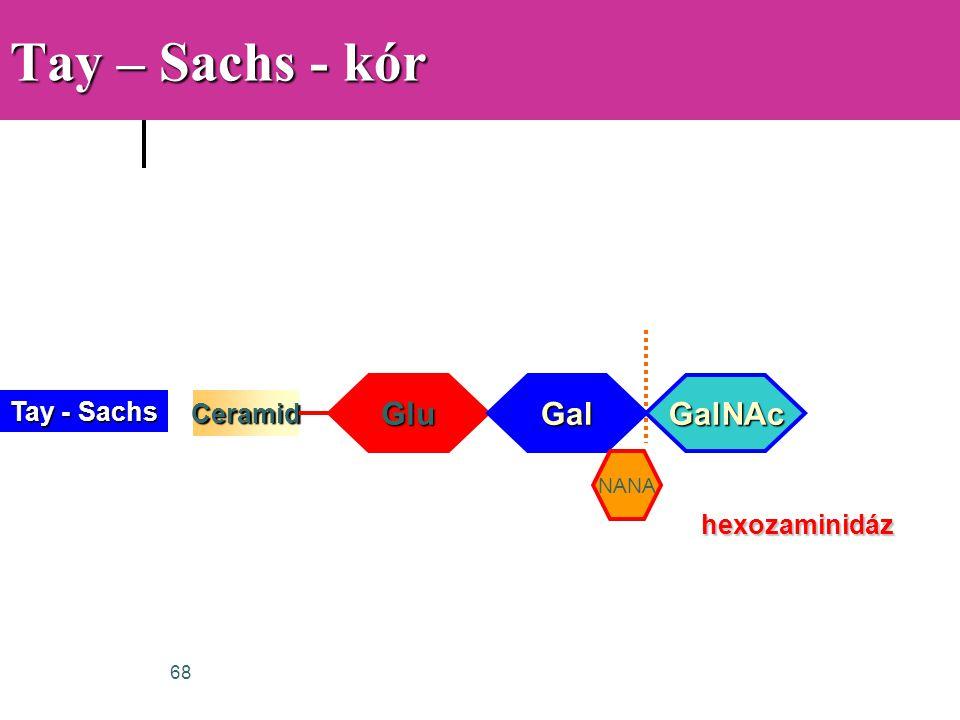 68 Tay – Sachs - kór Ceramid Glu hexozaminidáz Gal NANA GalNAc Tay - Sachs