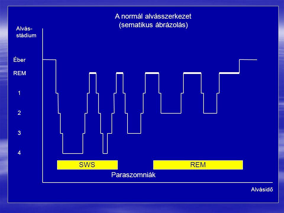 A normál alvásszerkezet (sematikus ábrázolás) Alvásidő Alvás- stádium Éber REM 1 2 3 4 SWSREM Paraszomniák