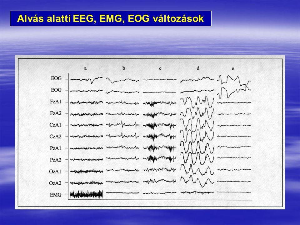 Alvás alatti EEG, EMG, EOG változások