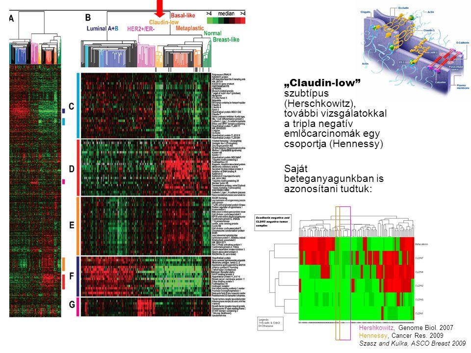 """""""Claudin-low szubtípus (Herschkowitz), további vizsgálatokkal a tripla negatív emlőcarcinomák egy csoportja (Hennessy) Saját beteganyagunkban is azonosítani tudtuk: Hershkowitz, Genome Biol."""