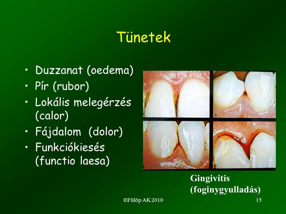 ©Fülöp AK 201015 Tünetek •Duzzanat (oedema) •Pír (rubor) •Lokális melegérzés (calor) •Fájdalom (dolor) •Funkciókiesés (functio laesa) Gingivitis (foginygyulladás)