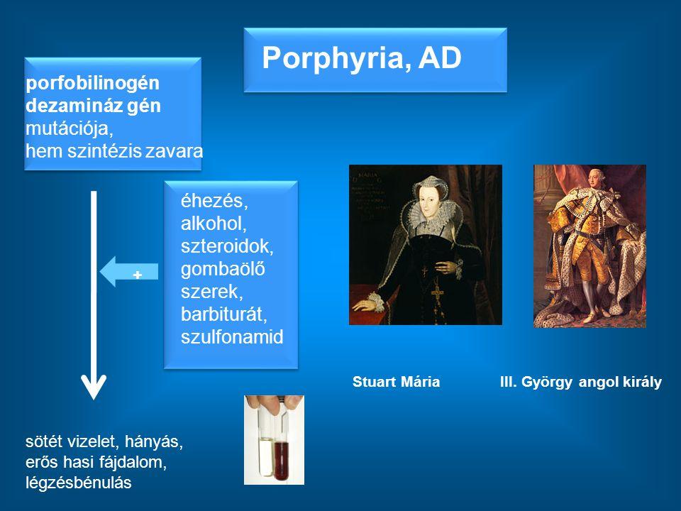 Porphyria, AD porfobilinogén dezamináz gén mutációja, hem szintézis zavara sötét vizelet, hányás, erős hasi fájdalom, légzésbénulás III. György angol