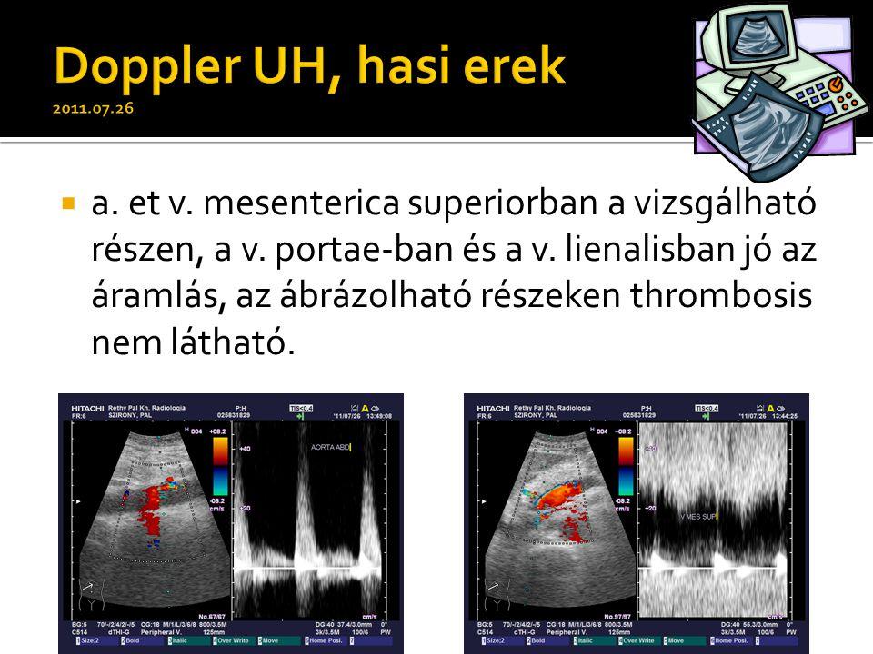  a. et v. mesenterica superiorban a vizsgálható részen, a v. portae-ban és a v. lienalisban jó az áramlás, az ábrázolható részeken thrombosis nem lát