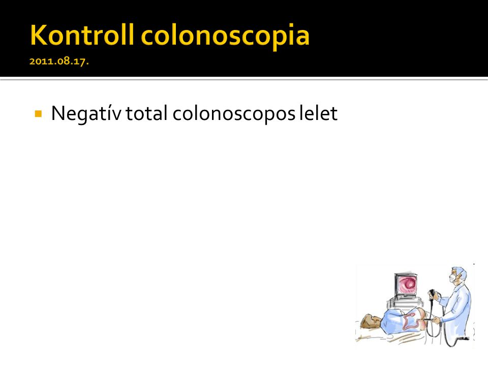  Negatív total colonoscopos lelet