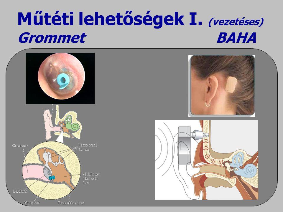 Műtéti lehetőségek I. (vezetéses) Grommet BAHA