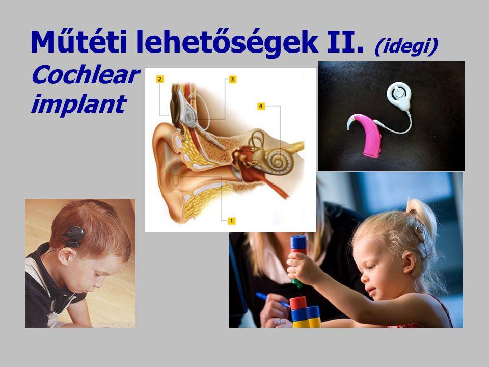 Műtéti lehetőségek II. (idegi) Cochlear implant