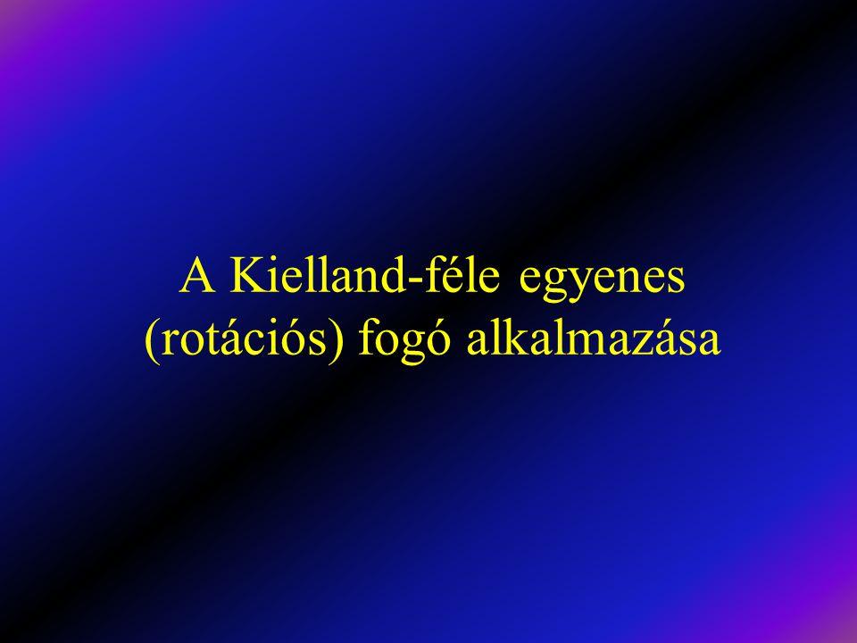 A Kielland-féle egyenes (rotációs) fogó alkalmazása