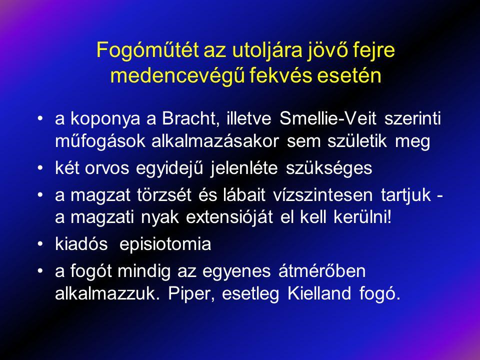 Fogóműtét az utoljára jövő fejre medencevégű fekvés esetén •a koponya a Bracht, illetve Smellie-Veit szerinti műfogások alkalmazásakor sem születik me
