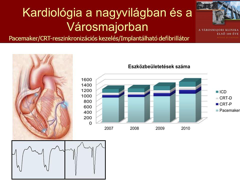 Pacemaker/CRT-reszinkronizációs kezelés/Implantálható defibrillátor