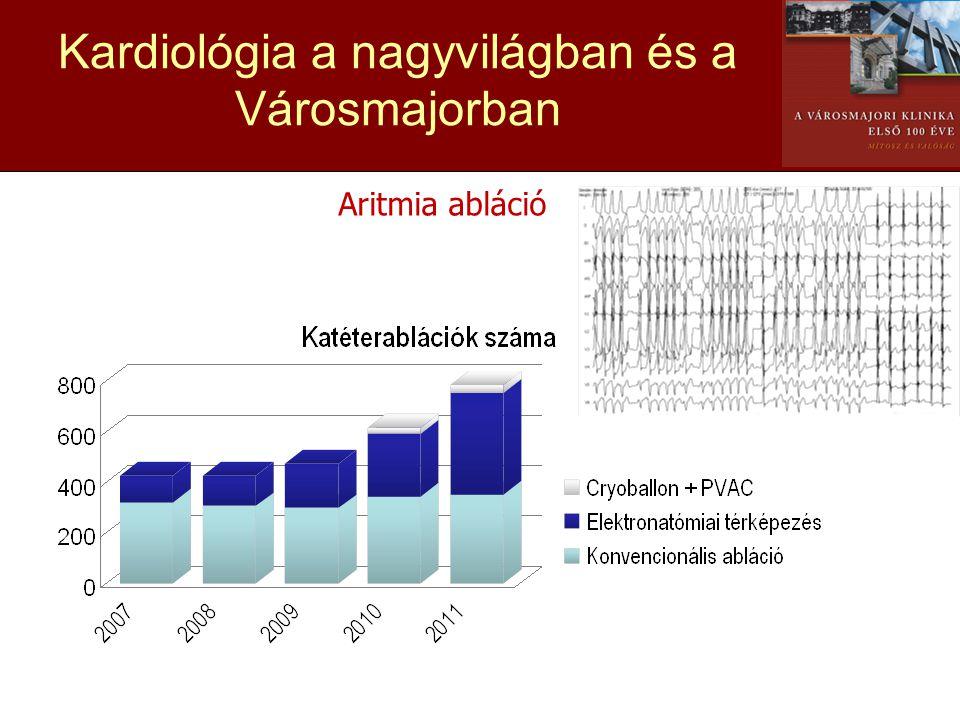 Kardiológia a nagyvilágban és a Városmajorban Aritmia abláció