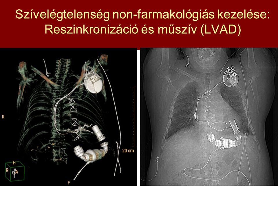 Szívelégtelenség non-farmakológiás kezelése: Reszinkronizáció és műszív (LVAD)
