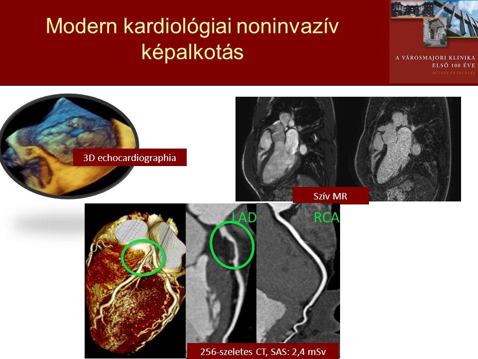 Modern kardiológiai noninvazív képalkotás 3D echocardiographia Szív MR LADRCA 256-szeletes CT, SAS: 2,4 mSv