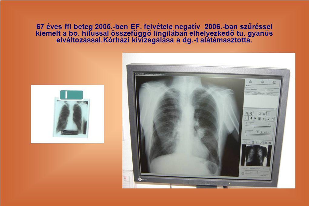 67 éves ffi beteg 2005.-ben EF. felvétele negatív 2006.-ban szűréssel kiemelt a bo. hilussal összefüggő lingilában elhelyezkedő tu. gyanús elváltozáss
