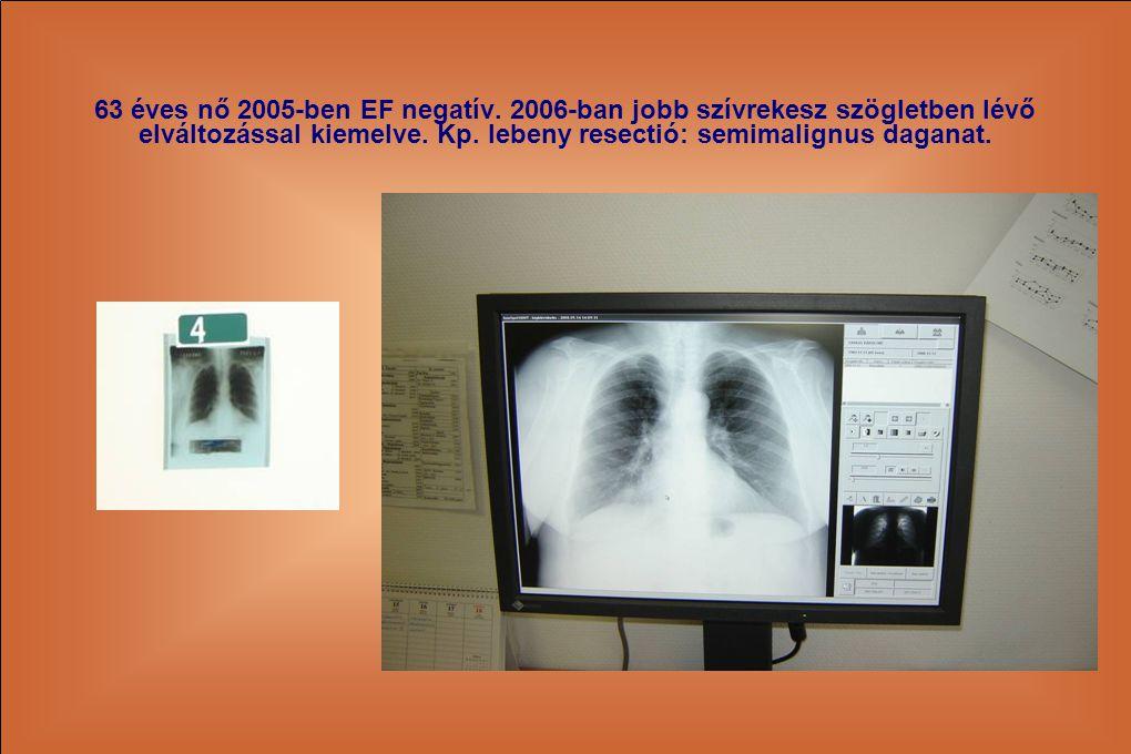 63 éves nő 2005-ben EF negatív. 2006-ban jobb szívrekesz szögletben lévő elváltozással kiemelve. Kp. lebeny resectió: semimalignus daganat.