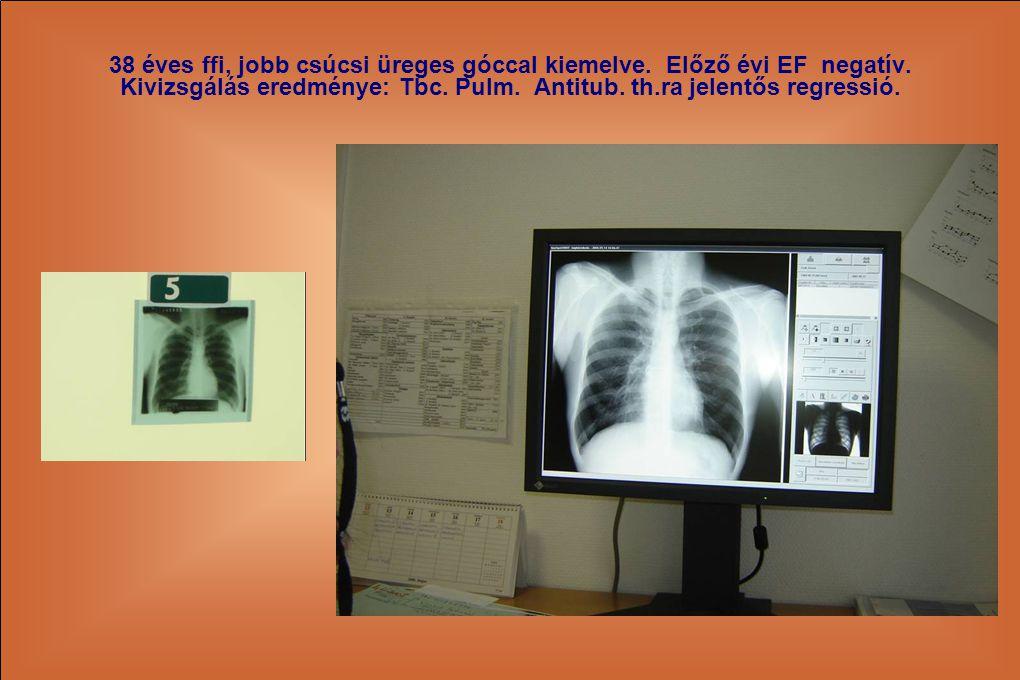 38 éves ffi, jobb csúcsi üreges góccal kiemelve. Előző évi EF negatív. Kivizsgálás eredménye: Tbc. Pulm. Antitub. th.ra jelentős regressió.