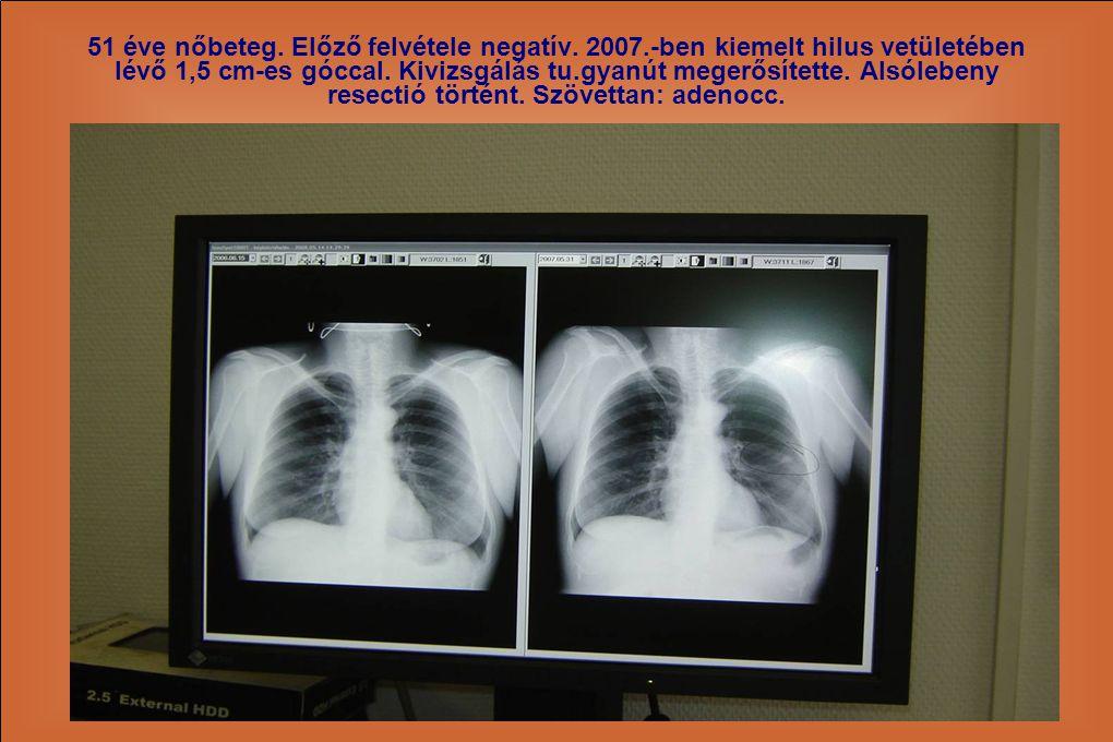 51 éve nőbeteg. Előző felvétele negatív. 2007.-ben kiemelt hilus vetületében lévő 1,5 cm-es góccal. Kivizsgálás tu.gyanút megerősítette. Alsólebeny re