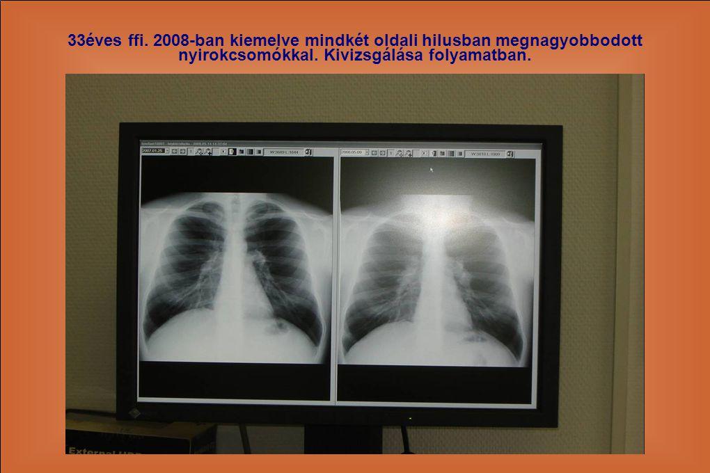 33éves ffi. 2008-ban kiemelve mindkét oldali hilusban megnagyobbodott nyirokcsomókkal. Kivizsgálása folyamatban.