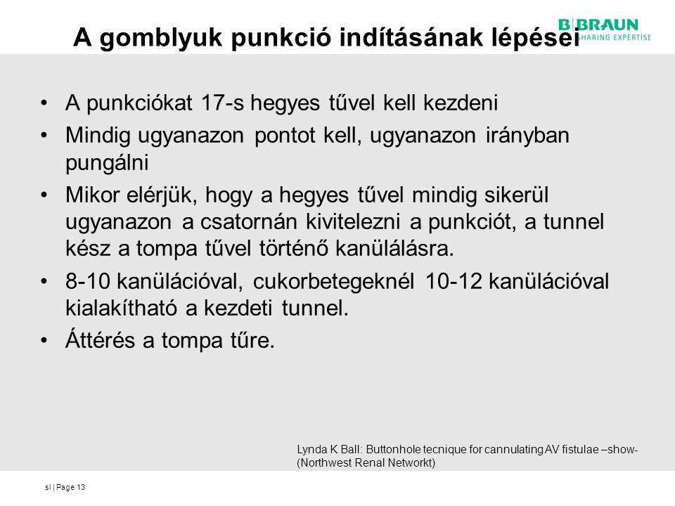 sl | Page A gomblyuk punkció indításának lépései •A punkciókat 17-s hegyes tűvel kell kezdeni •Mindig ugyanazon pontot kell, ugyanazon irányban pungálni •Mikor elérjük, hogy a hegyes tűvel mindig sikerül ugyanazon a csatornán kivitelezni a punkciót, a tunnel kész a tompa tűvel történő kanülálásra.