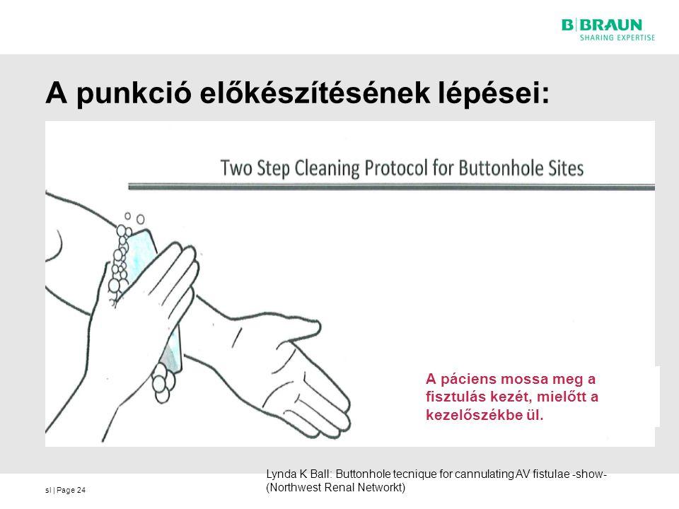sl | Page A punkció előkészítésének lépései: Lynda K Ball: Buttonhole tecnique for cannulating AV fistulae -show- (Northwest Renal Networkt) A páciens mossa meg a fisztulás kezét, mielőtt a kezelőszékbe ül.