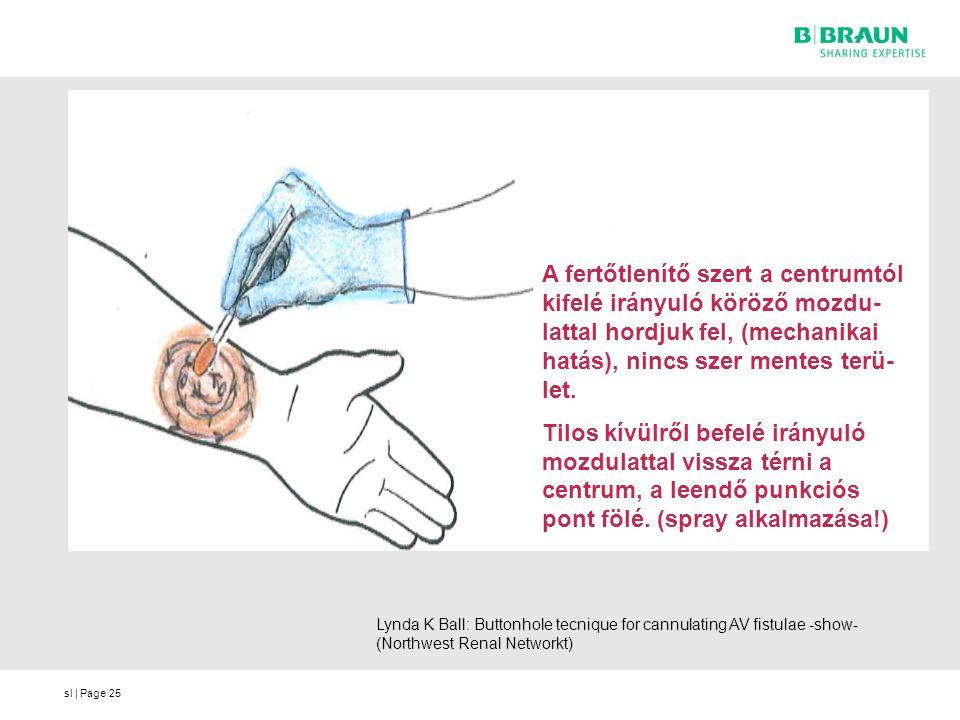 sl | Page Lynda K Ball: Buttonhole tecnique for cannulating AV fistulae -show- (Northwest Renal Networkt) A fertőtlenítő szert a centrumtól kifelé irá