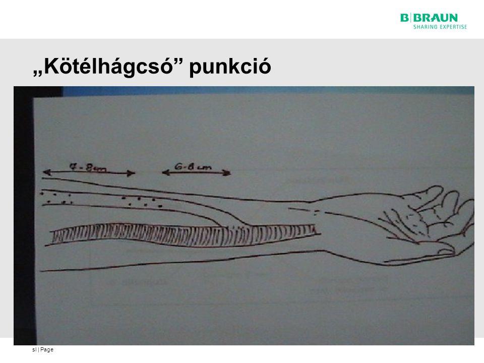 sl   Page Lynda K Ball: Buttonhole tecnique for cannulating AV fistulae -show- (Northwest Renal Networkt) Megfelelő módon távolítsuk el a véralvadék/pörkszövet maradványt a punkciós pontból 26