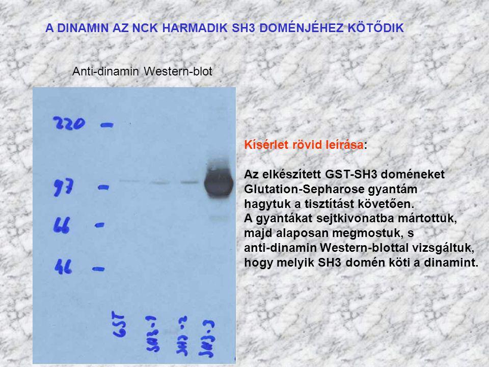 A DINAMIN AZ NCK HARMADIK SH3 DOMÉNJÉHEZ KÖTŐDIK Anti-dinamin Western-blot Kísérlet rövid leírása: Az elkészített GST-SH3 doméneket Glutation-Sepharos