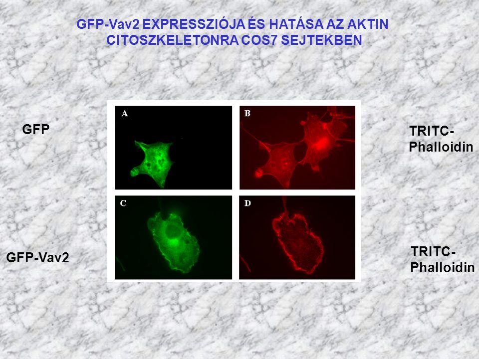 GFP-Vav2 EXPRESSZIÓJA ÉS HATÁSA AZ AKTIN CITOSZKELETONRA COS7 SEJTEKBEN GFP GFP-Vav2 TRITC- Phalloidin TRITC- Phalloidin