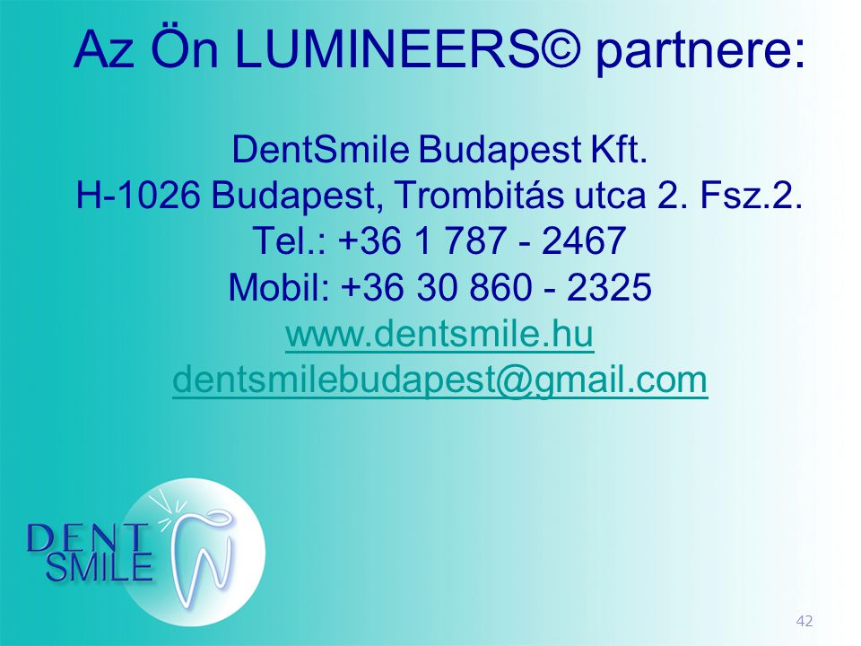 42 Az Ön LUMINEERS© partnere: DentSmile Budapest Kft. H-1026 Budapest, Trombitás utca 2. Fsz.2. Tel.: +36 1 787 - 2467 Mobil: +36 30 860 - 2325 www.de