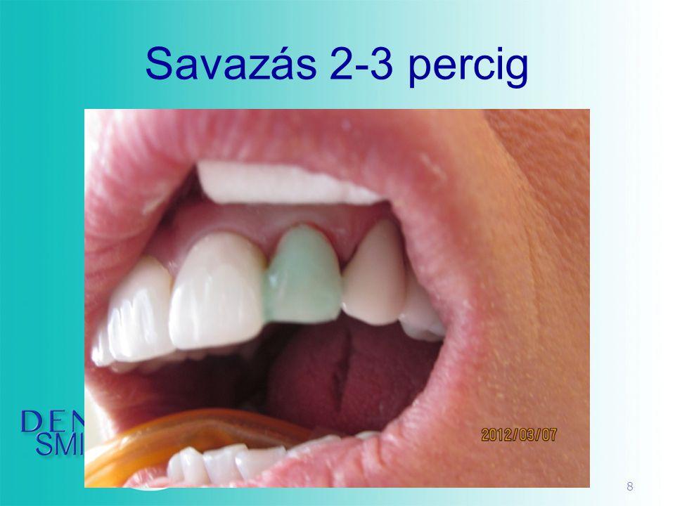 39 DVD • 3 perces dvd • smile discovery program • 7 perces technika