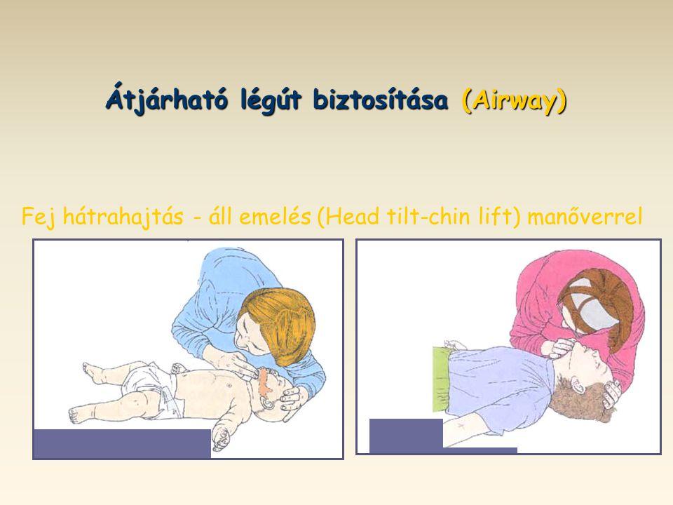 Átjárható légút biztosítása (Airway) Fej hátrahajtás - áll emelés (Head tilt-chin lift) manőverrel