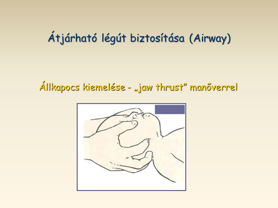 """Átjárható légút biztosítása (Airway) Állkapocs kiemelése - """"jaw thrust"""" manőverrel"""