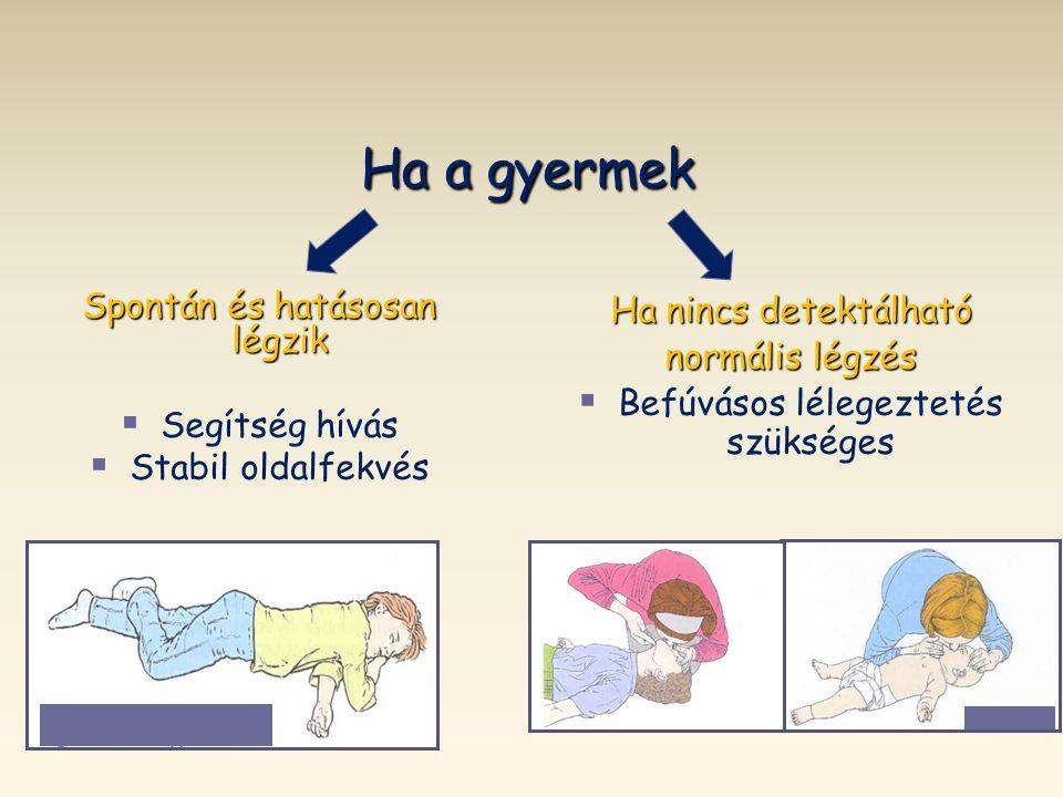 Ha a gyermek Spontán és hatásosan légzik   Segítség hívás   Stabil oldalfekvés Ha nincs detektálható normális légzés   Befúvásos lélegeztetés sz