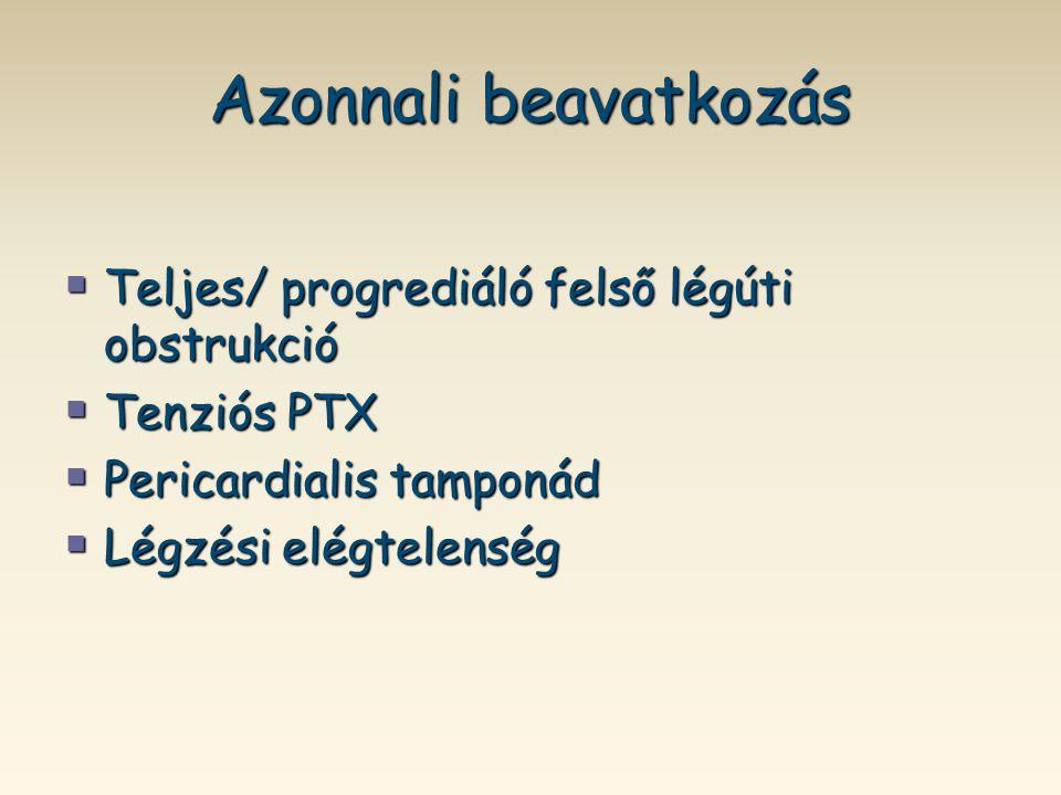 Azonnali beavatkozás  Teljes/ progrediáló felső légúti obstrukció  Tenziós PTX  Pericardialis tamponád  Légzési elégtelenség