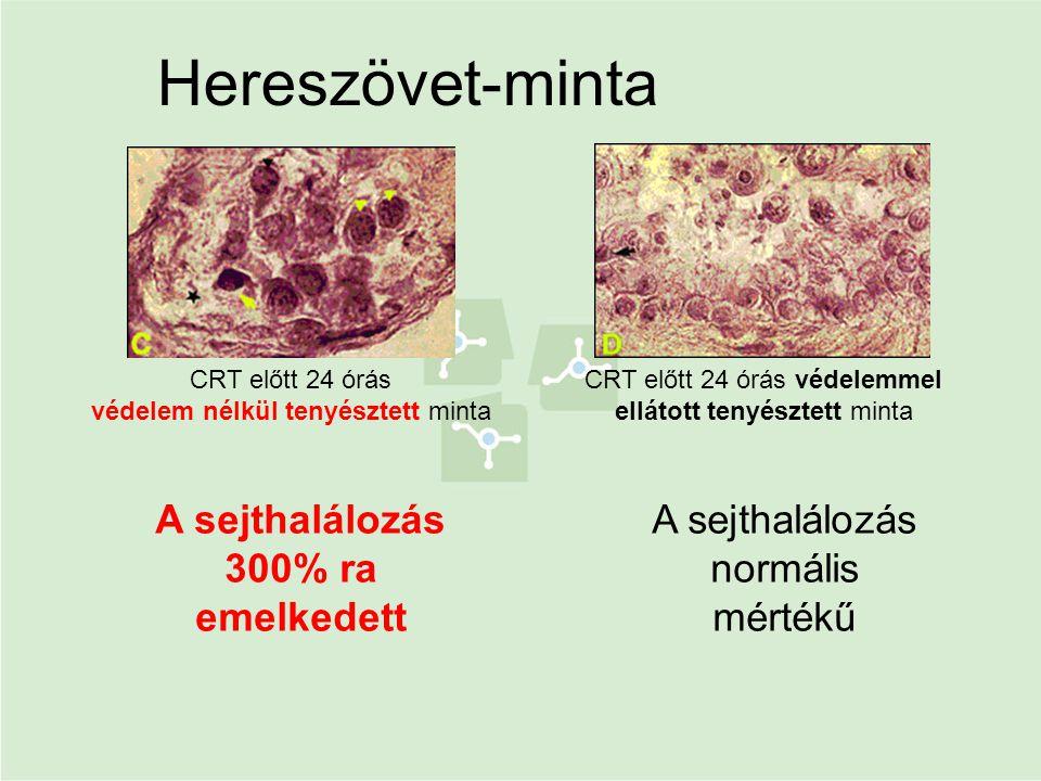 CRT előtt 24 órás védelem nélkül tenyésztett minta CRT előtt 24 órás védelemmel ellátott tenyésztett minta Hereszövet-minta A sejthalálozás normális m