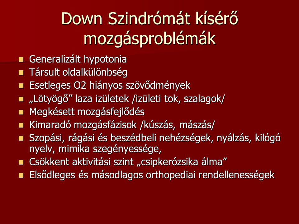 """Down Szindrómát kísérő mozgásproblémák  Generalizált hypotonia  Társult oldalkülönbség  Esetleges O2 hiányos szövődmények  """"Lötyögő"""" laza izületek"""