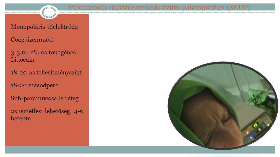 Monopoláris tűelektróda Coag üzemmód 3-3 ml 2%-os tonogénes Lidocain 18-20-as teljesítményszint 18-20 másodperc Sub-paramucosalis réteg 2x ismétlési l