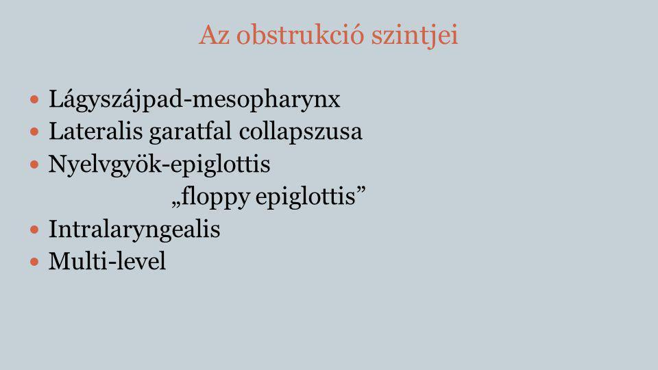 """Az obstrukció szintjei  Lágyszájpad-mesopharynx  Lateralis garatfal collapszusa  Nyelvgyök-epiglottis """"floppy epiglottis""""  Intralaryngealis  Mult"""