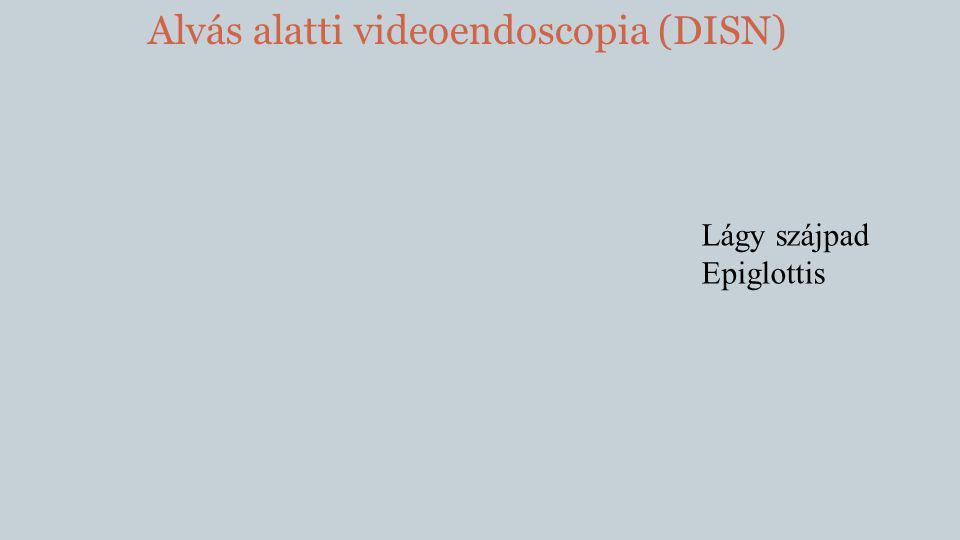 Alvás alatti videoendoscopia (DISN) Lágy szájpad Epiglottis