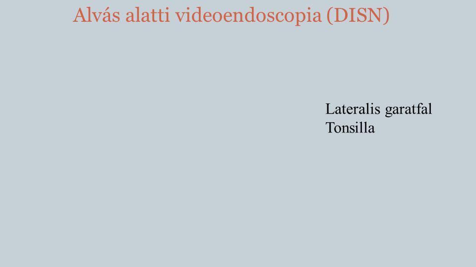 Alvás alatti videoendoscopia (DISN) Lateralis garatfal Tonsilla