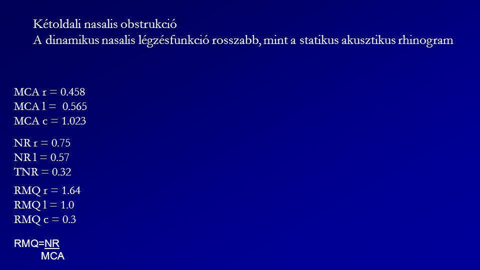 MCA r = 0.458 MCA l = 0.565 MCA c = 1.023 NR r = 0.75 NR l = 0.57 TNR = 0.32 RMQ r = 1.64 RMQ l = 1.0 RMQ c = 0.3 Kétoldali nasalis obstrukció A dinam