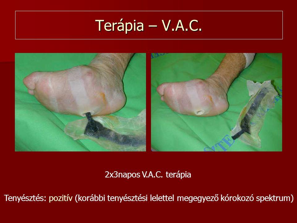 Tenyésztés: pozitív (korábbi tenyésztési lelettel megegyező kórokozó spektrum) 2x3napos V.A.C. terápia