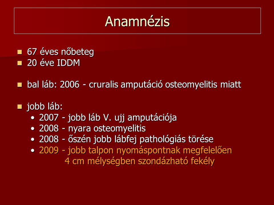 Anamnézis  67 éves nőbeteg  20 éve IDDM  bal láb: 2006 - cruralis amputáció osteomyelitis miatt  jobb láb: •2007 - jobb láb V. ujj amputációja •20