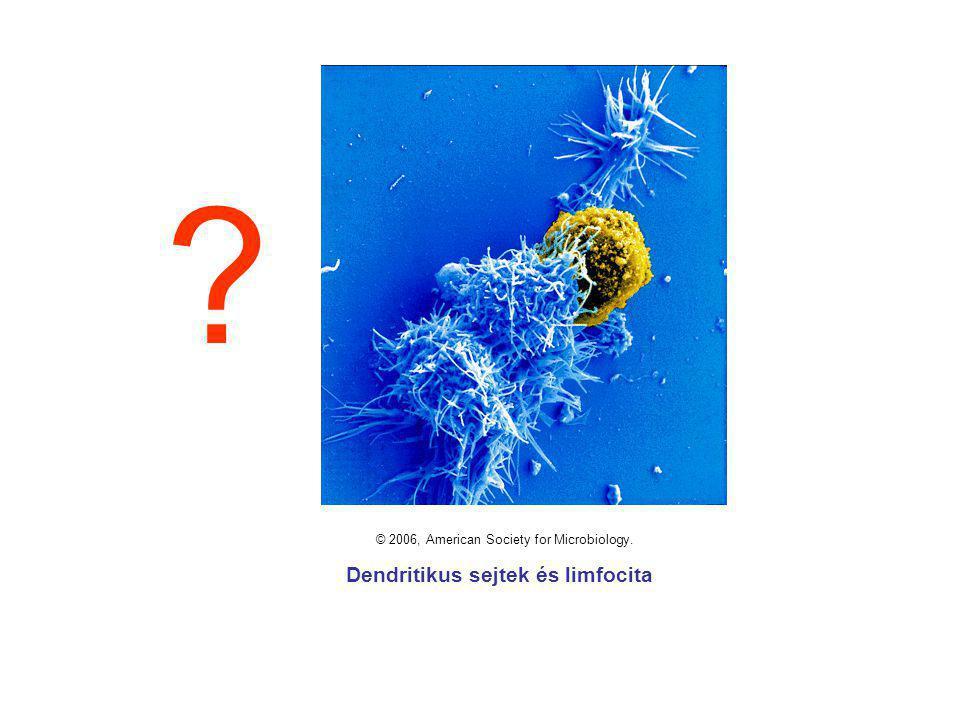 © 2006, American Society for Microbiology. Dendritikus sejtek és limfocita ?