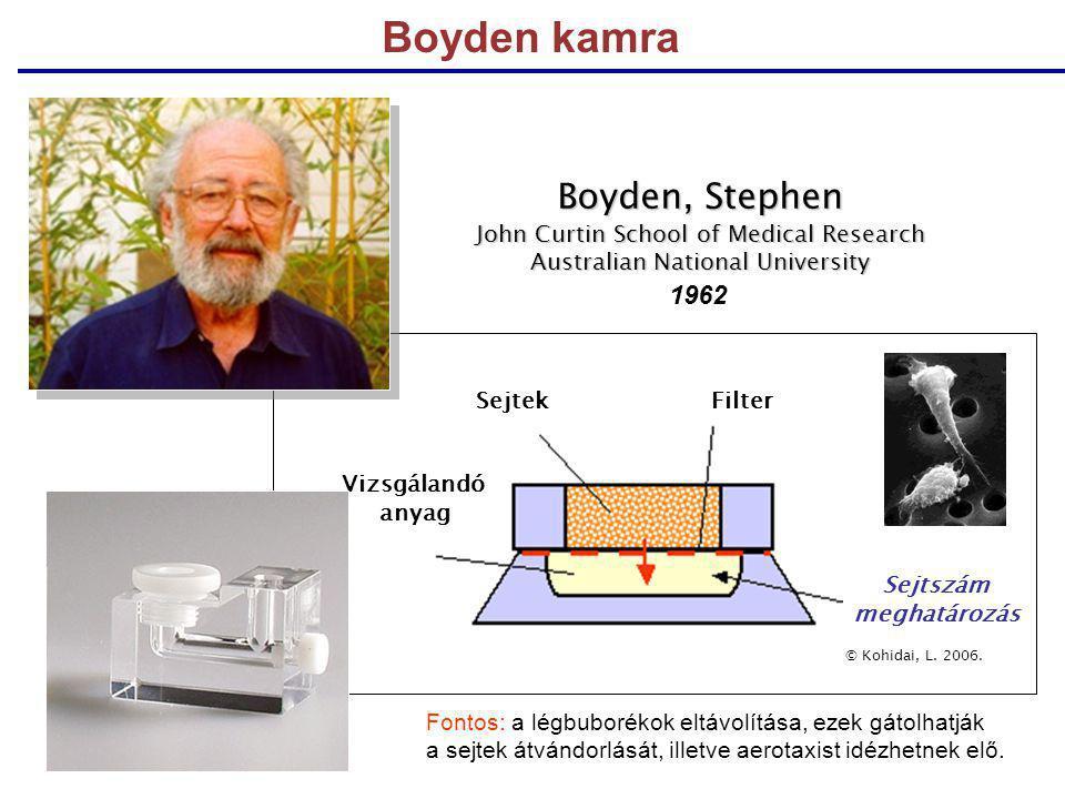 Boyden kamra SejtekFilter Vizsgálandó anyag Sejtszám meghatározás © Kohidai, L. 2006. Boyden, Stephen John Curtin School of Medical Research Australia