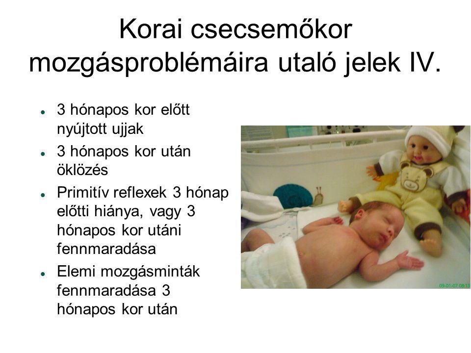 Korai csecsemőkor mozgásproblémáira utaló jelek IV. 33 hónapos kor előtt nyújtott ujjak 33 hónapos kor után öklözés PPrimitív reflexek 3 hónap e