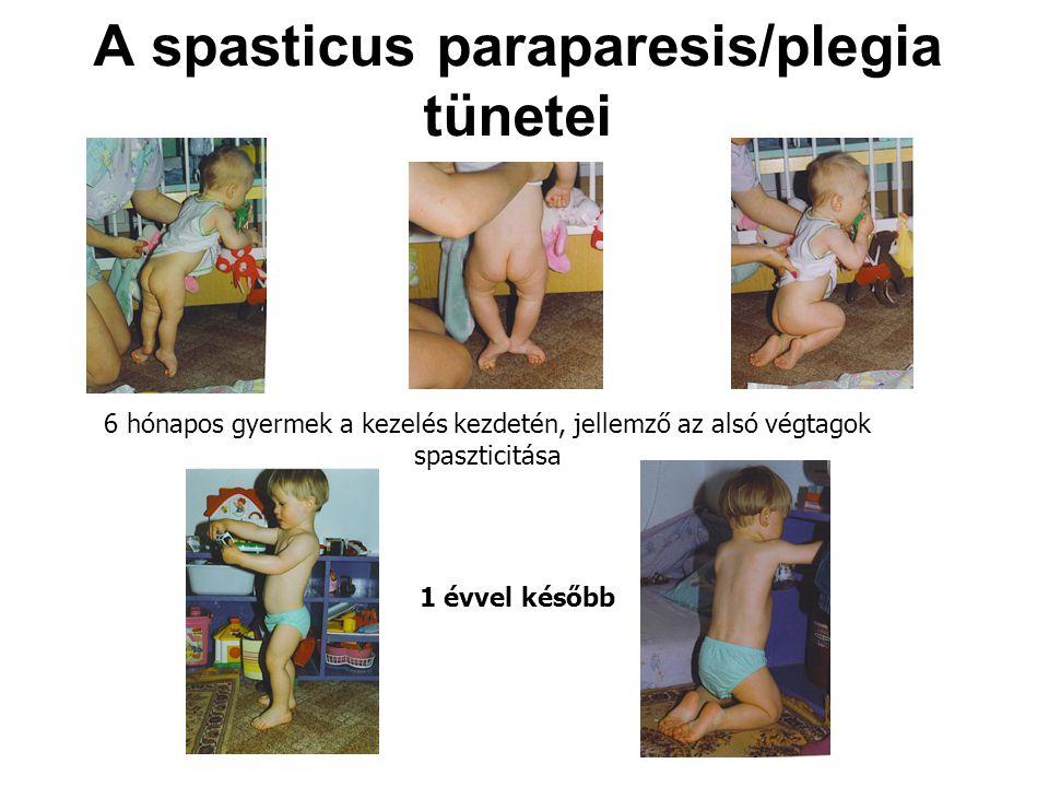 A spasticus paraparesis/plegia tünetei 6 hónapos gyermek a kezelés kezdetén, jellemző az alsó végtagok spaszticitása 1 évvel később