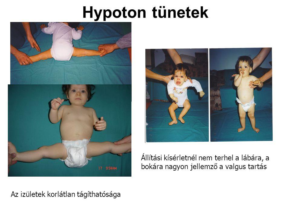 Hypoton tünetek Az izületek korlátlan tágíthatósága Állítási kísérletnél nem terhel a lábára, a bokára nagyon jellemző a valgus tartás