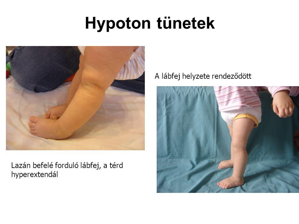 Hypoton tünetek A lábfej helyzete rendeződött Lazán befelé forduló lábfej, a térd hyperextendál