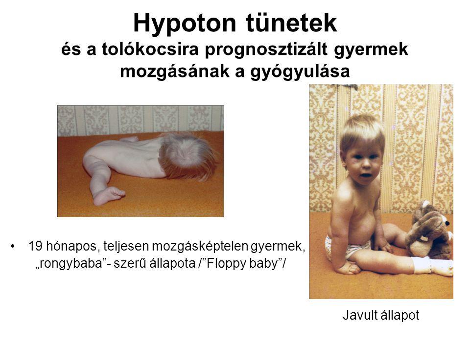 """Hypoton tünetek és a tolókocsira prognosztizált gyermek mozgásának a gyógyulása •19 hónapos, teljesen mozgásképtelen gyermek, """"rongybaba""""- szerű állap"""